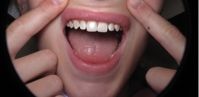 Dental Trauma Post Bonding (1)