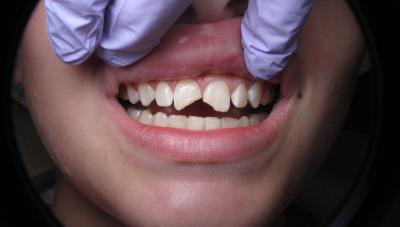 Dental Trauma Pre Bonding (1)